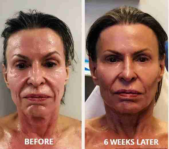 agnes rf reduce wrinkles memphis