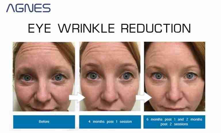 agness rf wrinkles forehead