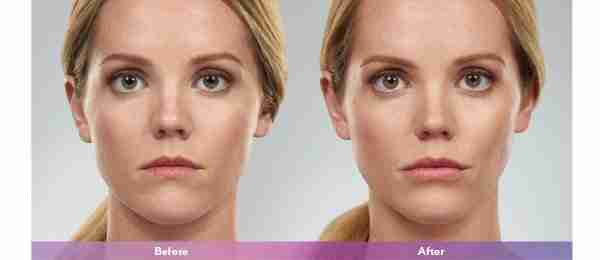 before and after Juvederm Voluma XC
