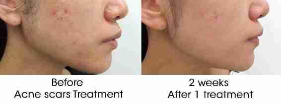 neogen acne