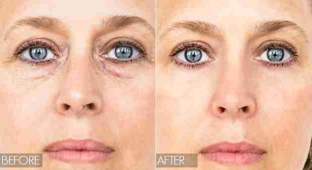 Neogen under eye bags