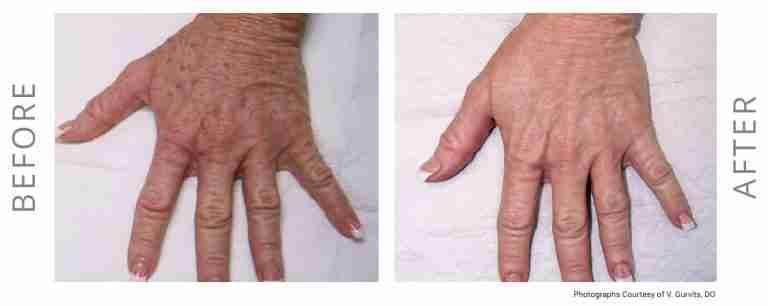 neogen hands