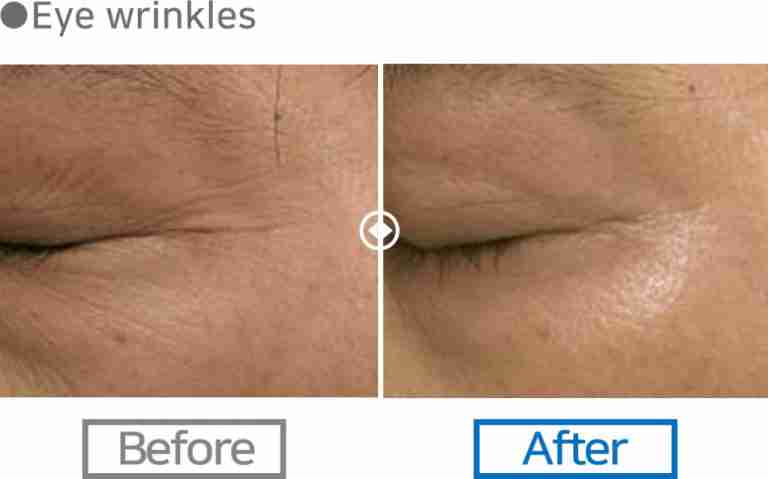 scarlet rf for wrinkles around eye