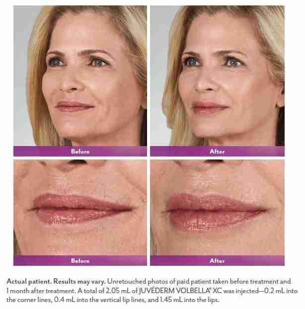 lip injections memphis