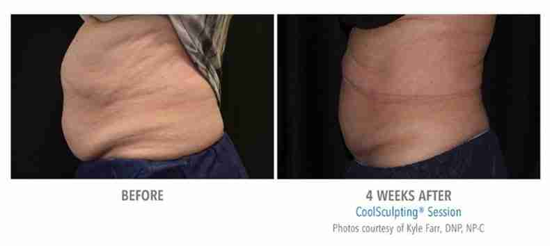 coolsculpting-before-after-3