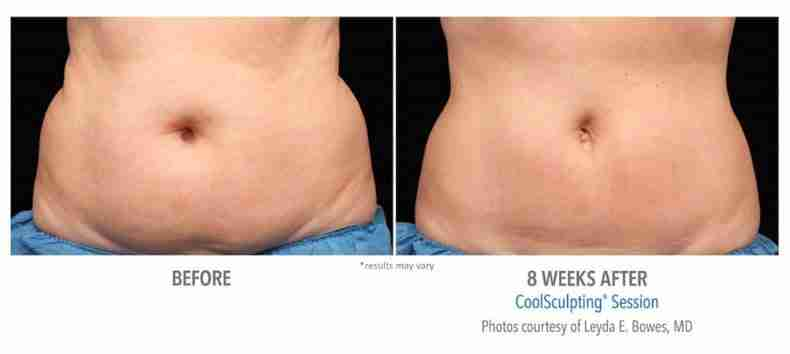 coolsculpting-before-after-4