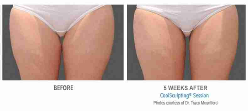 coolsculpting-before-after-5