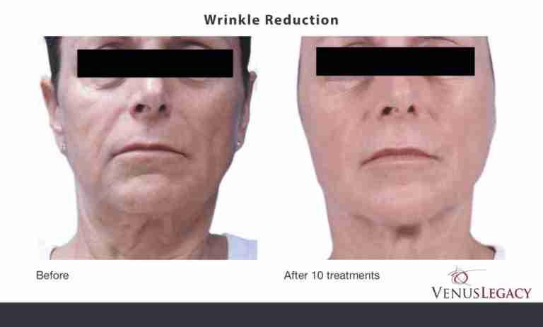 venus-wrinkle-1-1024x617